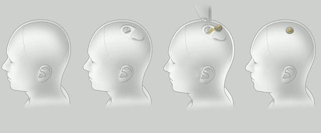 ربط الدماغ البشري بالكمبيوتر ، إيلون ماسك